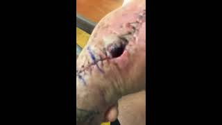 Staph infection after surgery