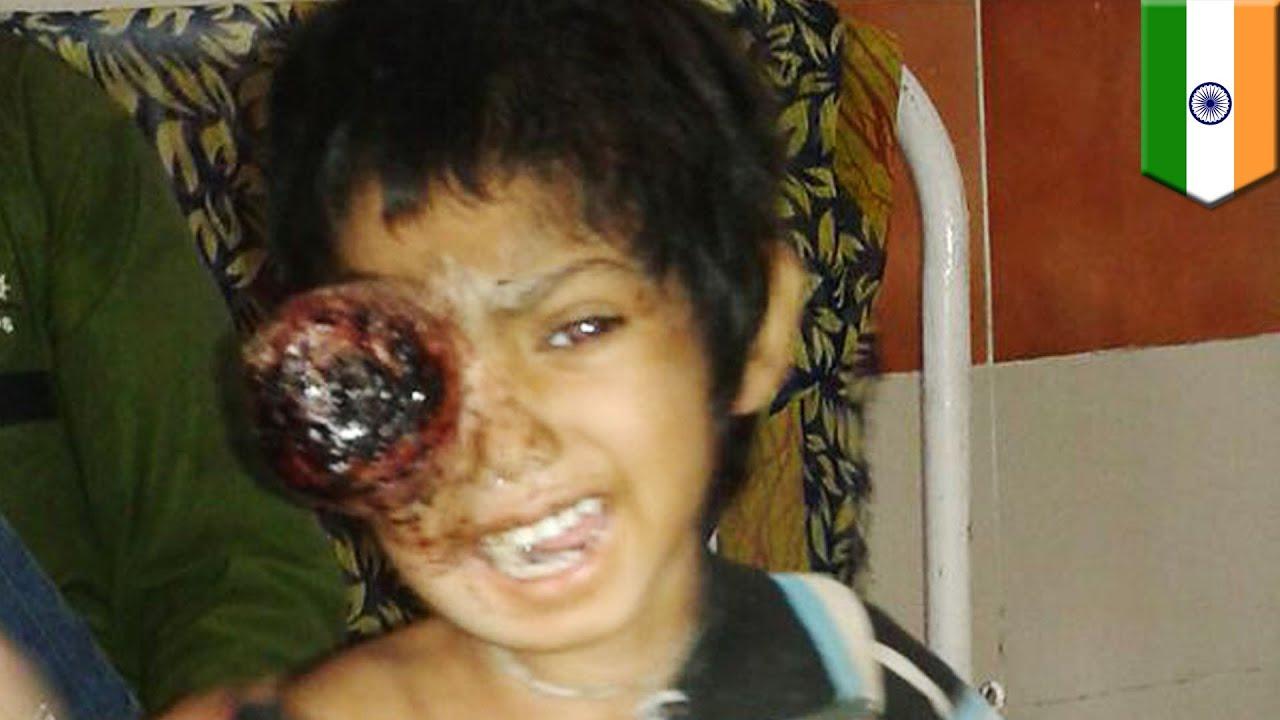 Gross cancerous tumor devouring girl's eye and brain ...
