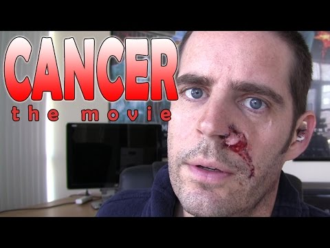 Cancer : The Movie - My Experiences With Basal Cell Carcinoma