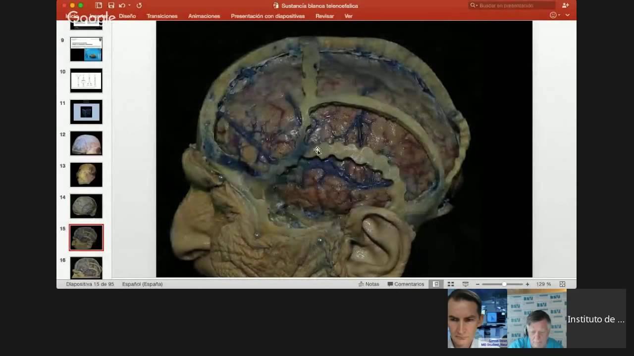 Anatomia y Dissecion de la Sustancia Blanca de Telencefalo - YouTube