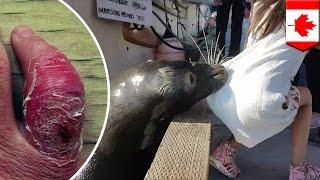 Gadis kecil yang digigit singa laut mungkin terkena infeksi - Tomonews