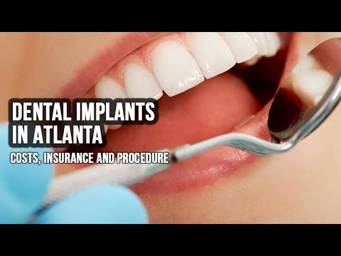 Dental Implants In Atlanta - Costs, Insurance and Procedure [2018]