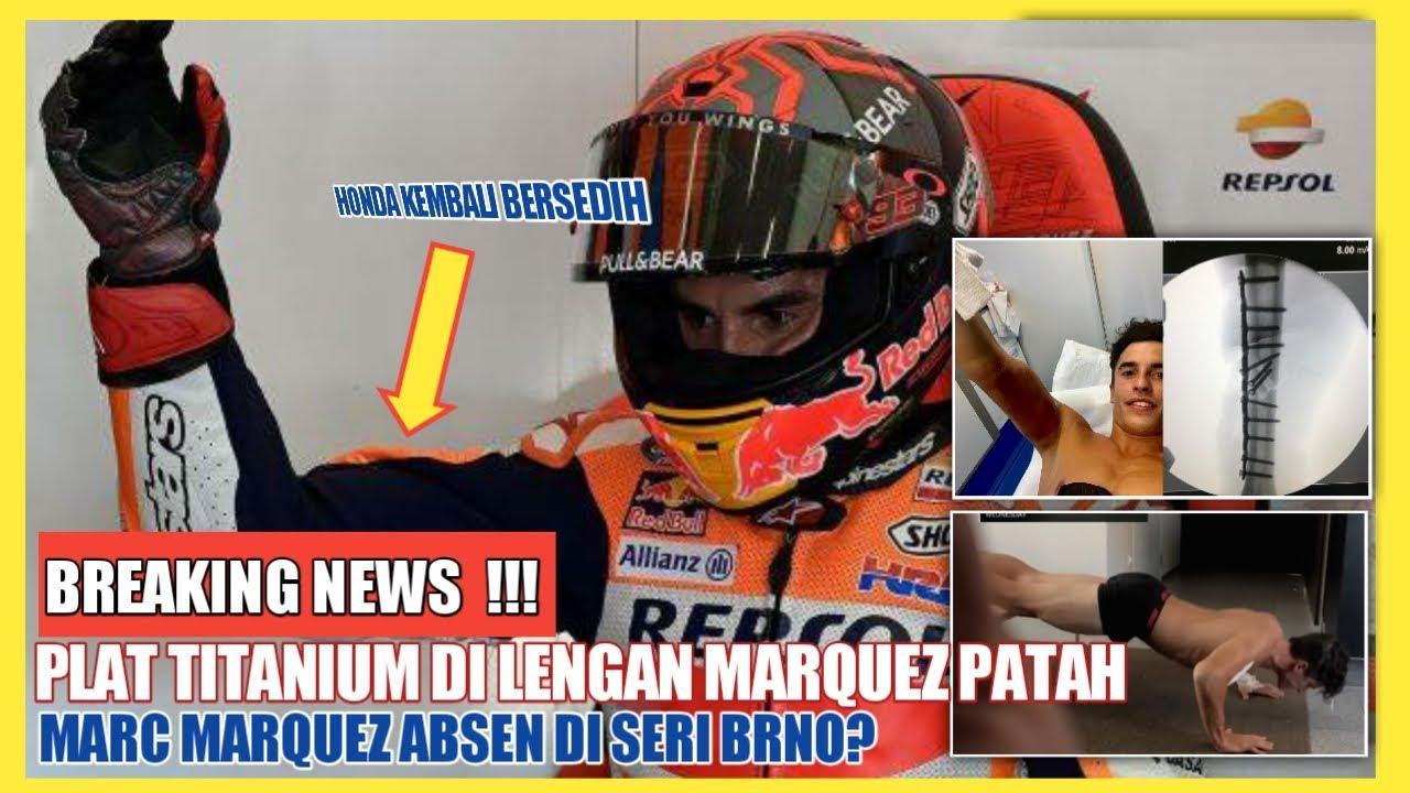 MENGEJUTKAN ❗ MOTOGP 2020 ❗PLAT TITANUM DI LENGAN MARC MARQUEZ PATAH ❗MARQUEZ TERANCAM ABSEN LAGI
