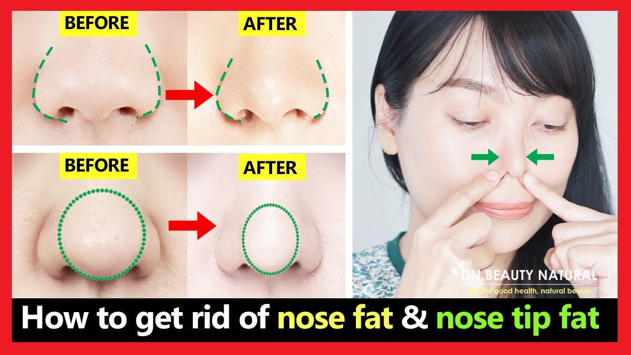 10 Best exercises! Get rid of nose fat, nose tip fat, bulbous nose tip, slim  down fat nose naturally.
