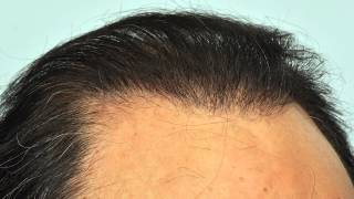 Mixed FUE+BHT video results- Jan 2013 - Dr. Cole