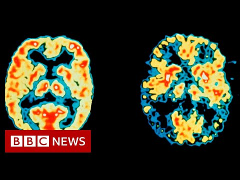 US approves first new Alzheimer's drug in 20 years - BBC News