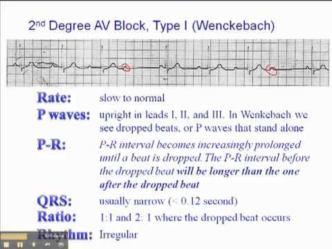 ECG: 2nd AV Block Type 1