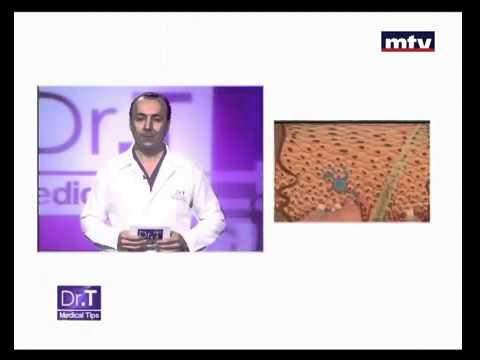 Facial Care  Beirut Lebanon -  Dr T Medical Tips