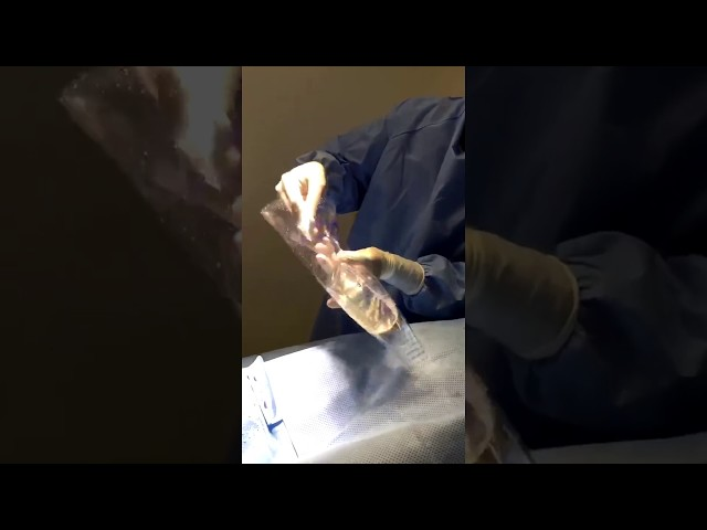 Breast Augmentation Using a Keller Funnel