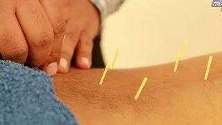 HINDI: Acupuncture Treatment Demo