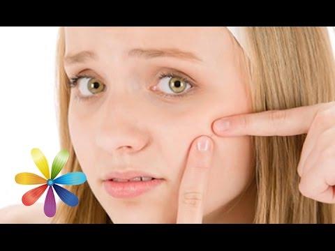 Способ сузить расширенные поры на лице