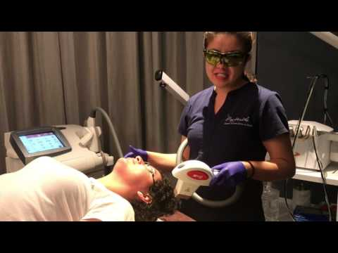 Laser Hair Reduction In English and Spanish By Master Aesthetician At Mountcastle Medspa