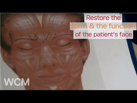 Weill Cornell Medicine's Dr. Anthony Sclafani on Post-Tumor Facial Reconstruction