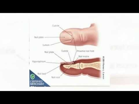 How to Prevent & Treat Black Toenail | Foot Care - YouTube