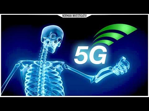 5G - Werden wir bald alle verstrahlt?