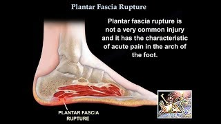 Rupture of the Plantar Fascia - Everything You Need To Know - Dr. Nabil Ebraheim