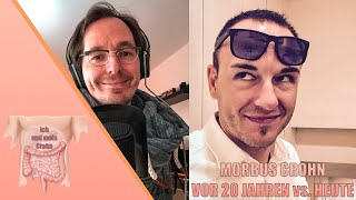 Morbus Crohn Vor 20 Jahren Vs  Heute (mit Daniel)