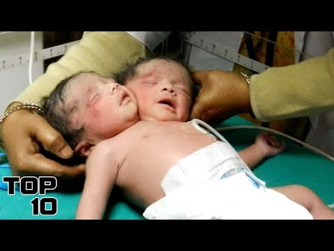 Top 10 Birth Stories You Won't Believe