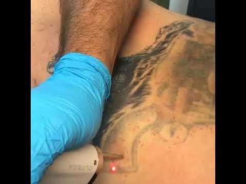 Laser Tattoo Removal Vegas...