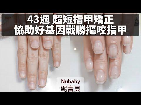 協助好基因戰勝摳咬指甲 - 43週處理問題指甲、摳咬指甲的後遺症