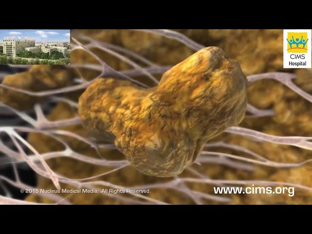 Atherosclerosis (Hindi) - CIMS Hospital