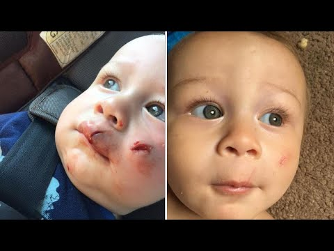 Mom Watches 1-Year-Old Son Accidentally Get Hit In Face By Flying Drone