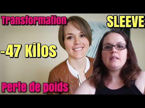 Ma perte de poids de 47 Kilos, ma transformation après la SLEEVE GASTRECTOMIE