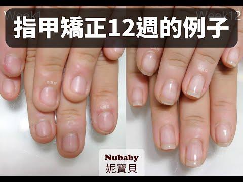 咬指甲後遺症 只用12週處理,短時間的指甲矯正會有什麼變化?