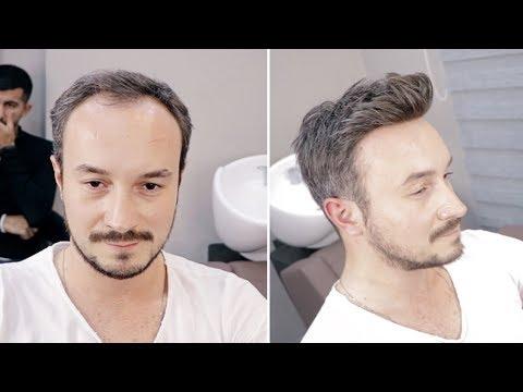 PROTEZ SAÇ İLE DEĞİŞ - Hair Replacement