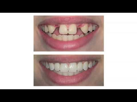 Albert Lea Dentist- Dental Implants Albert Lea, MN 507-377-5033