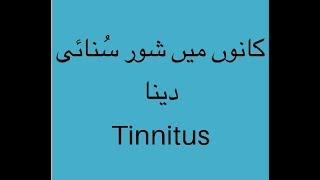 Tinnitus or ringing in ears