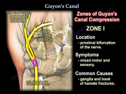 Guyon's Canal , Ulnar tunnel syndrome .Everything You Need To Know - Dr. Nabil Ebraheim