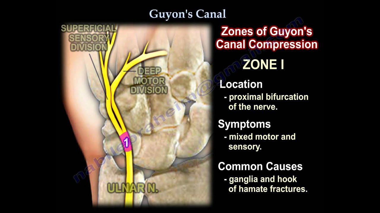 Guyon\'s Canal , Ulnar tunnel syndrome .Everything You Need To Know ...