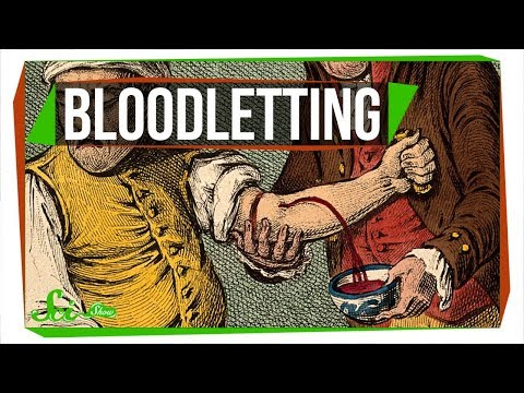 Why Do Some Doctors Still Use Bloodletting?