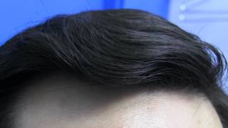 Dr Hasson Hair Transplant 4000+ Grafts