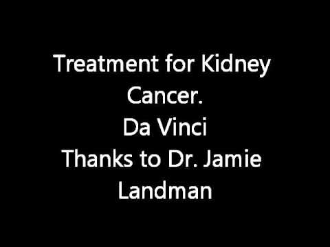 Kidney Cancer - Da Vinci - robotic surgery