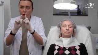 Обучение косметологии. Коррекция возрастных пациентов:губы, носогубка, нижняя треть.