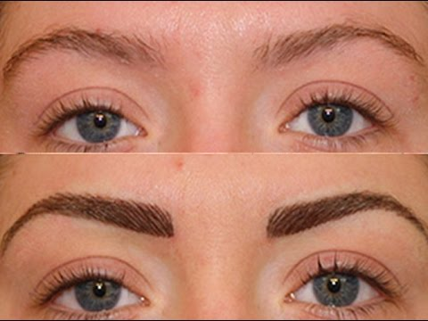 Everything you wanted to know about Eyebrow Implants