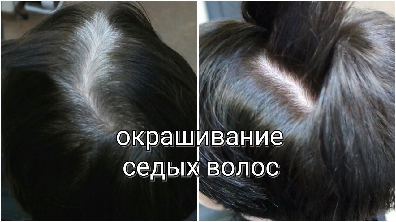 На лице седой волос