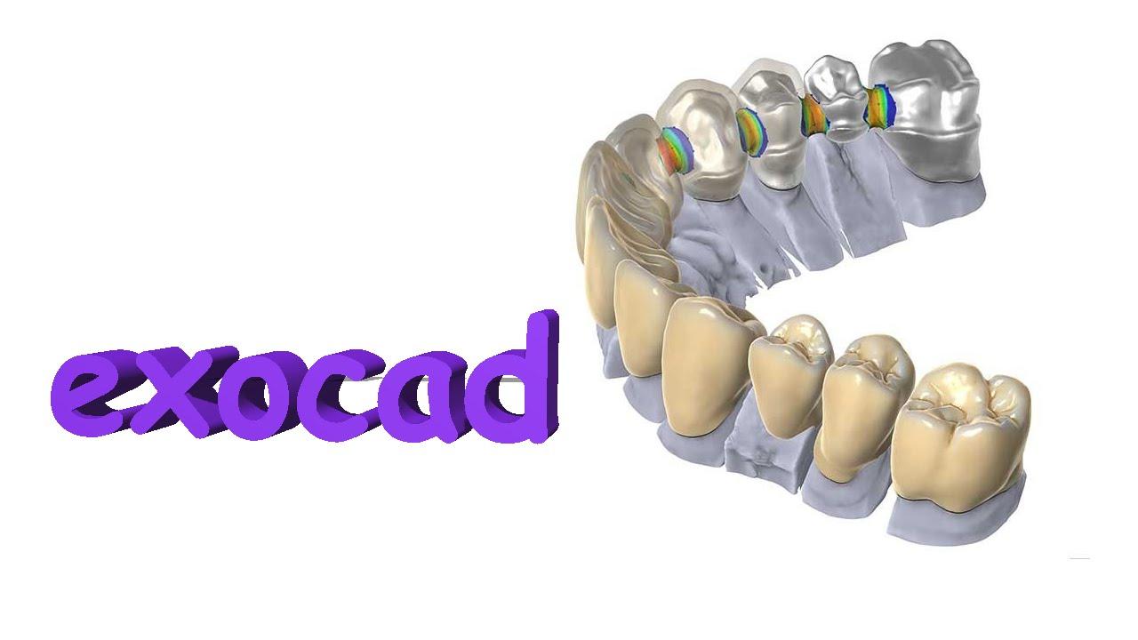 Dental exocad