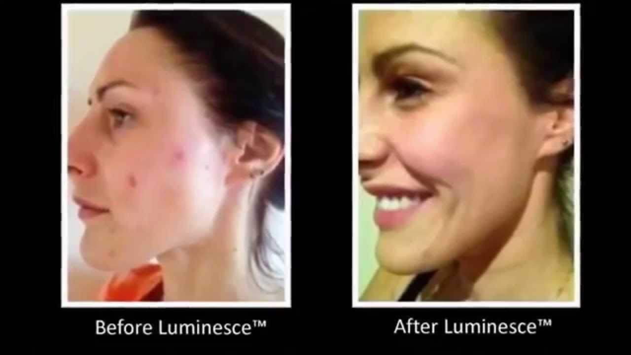 Anti Aging Before After Jeunesse Luminesce Resveratrol It