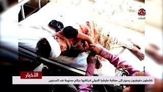 ناشطون حقوقيون يدعون إلى معاقبة مليشيا الحوثي لإرتكابها جرائم ممنهجة ضد المدنيين