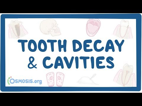 Tooth decay and cavities - causes, symptoms, diagnosis, treatment, pathology