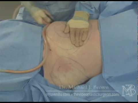 Liposuction of abdominal area on man