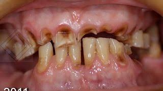 Лечение стираемости зубов. Протезирование съёмным протезом.(, 2016-09-29T11:10:52.000Z)