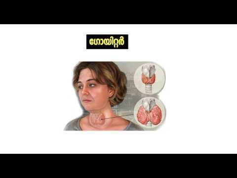 Kannur Classroom - Thyroid (Malayalam)