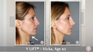 Y LIFT ® 2015 - Vicka | Instant, Non Surgical Facelift