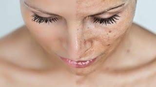 ★ Как избавиться от пигментных пятен на лице? 8 проверенных средств