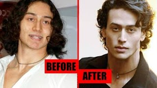 Tiger Shroff Plastic Surgery