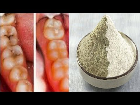 HOW TO REVERSE CAVITIES AND NATURALLY HEAL TOOTH DECAY!